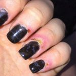 Manicure turns to nightmare for Rotorua teen